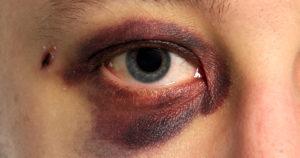 Lesioni Agli Occhi