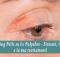 Peeling Pelle su Le palpebre - Sintomi, Cause e la sua trattamenti