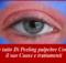Sapere tutto Di Peeling palpebre Compreso il suo Cause e trattamenti