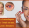 Imparare a Trattare Palpebra Dermatite