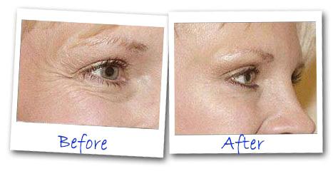 Eye Secrets Under Eye Tightener Prima Dopo Effetti