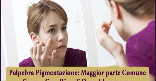 Palpebra Pigmentazione - Maggior parte Comune Cause e Casa Rimedi Dovrebbe provare