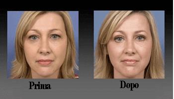 Palpebra ChirurgiaPrima E Dopo