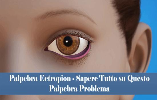 Palpebra Ectropion - Sapere Tutto su Questo Palpebra Problema