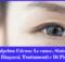 Palpebra Edema- Le cause, Sintomi, Diagnosi, Trattamenti e Di Più
