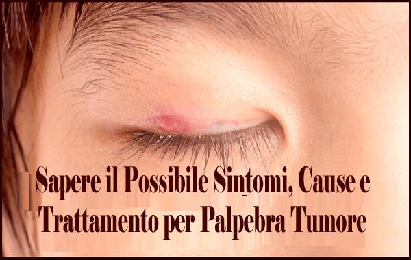 Sapere il Possibile Sintomi, Cause e Trattamento per Palpebra Tumore