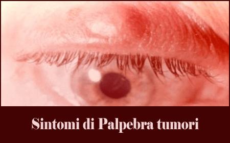 Sintomi di Palpebra tumori