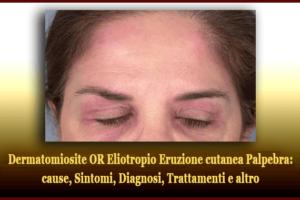 Dermatomiosite OR Eliotropio Eruzione cutanea Palpebra - cause, Sintomi, Diagnosi, Trattamenti e altro