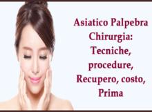 Asiatico Palpebra Chirurgia -Tecniche, procedure, Recupero, costo, Prima
