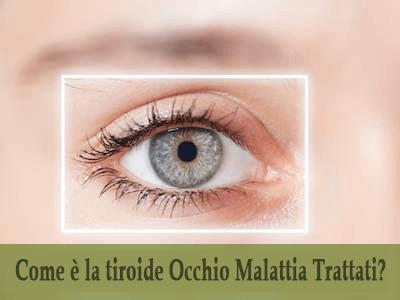 Come è la tiroide Occhio Malattia Trattati