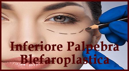 Inferiore Palpebra Blefaroplastica