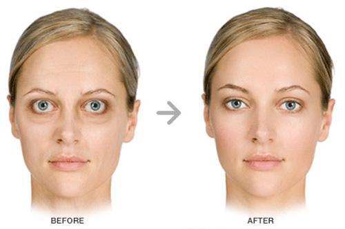 Occhio Malattia - before-after