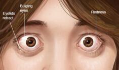 Tiroide Occhio Malattia