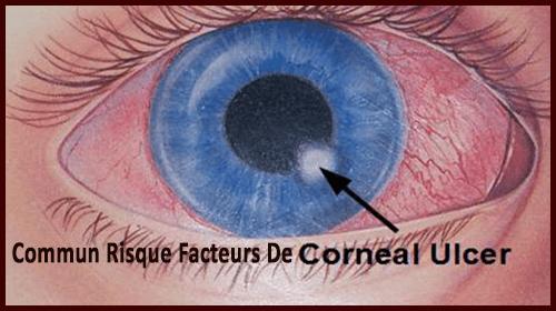 Comune Rischio Fattori Di corneal ulcer