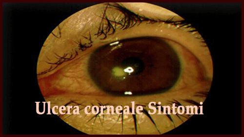 Ulcera corneale Sintomi