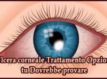 Ulcera corneale Trattamento Opzioni tu Dovrebbe provare