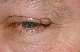 Asportazione papilloma occhio, Papilloma palpebrale occhio - handmade4u.ro